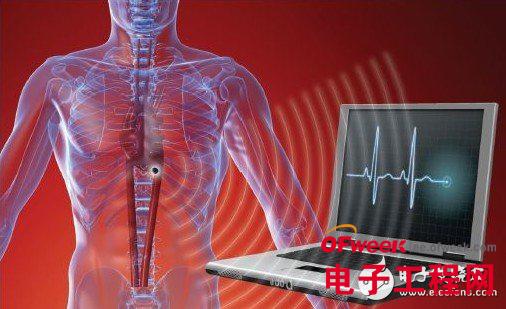 医疗电子领域中各类传感器的基本应用