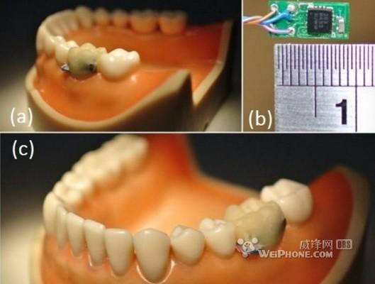 用于口腔监测的牙齿传感器 您的贴身小秘书